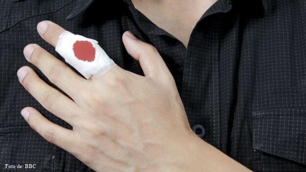 herida en un dedo