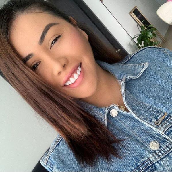 Yina Calderón antes de las cirugías