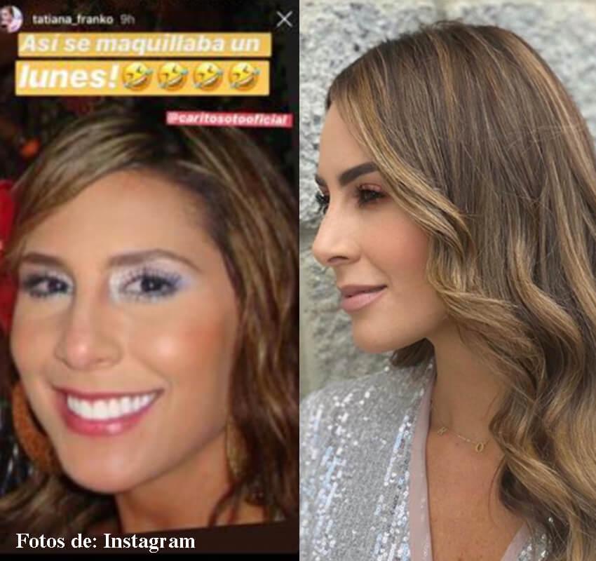 Antes y después de Carolina Soto