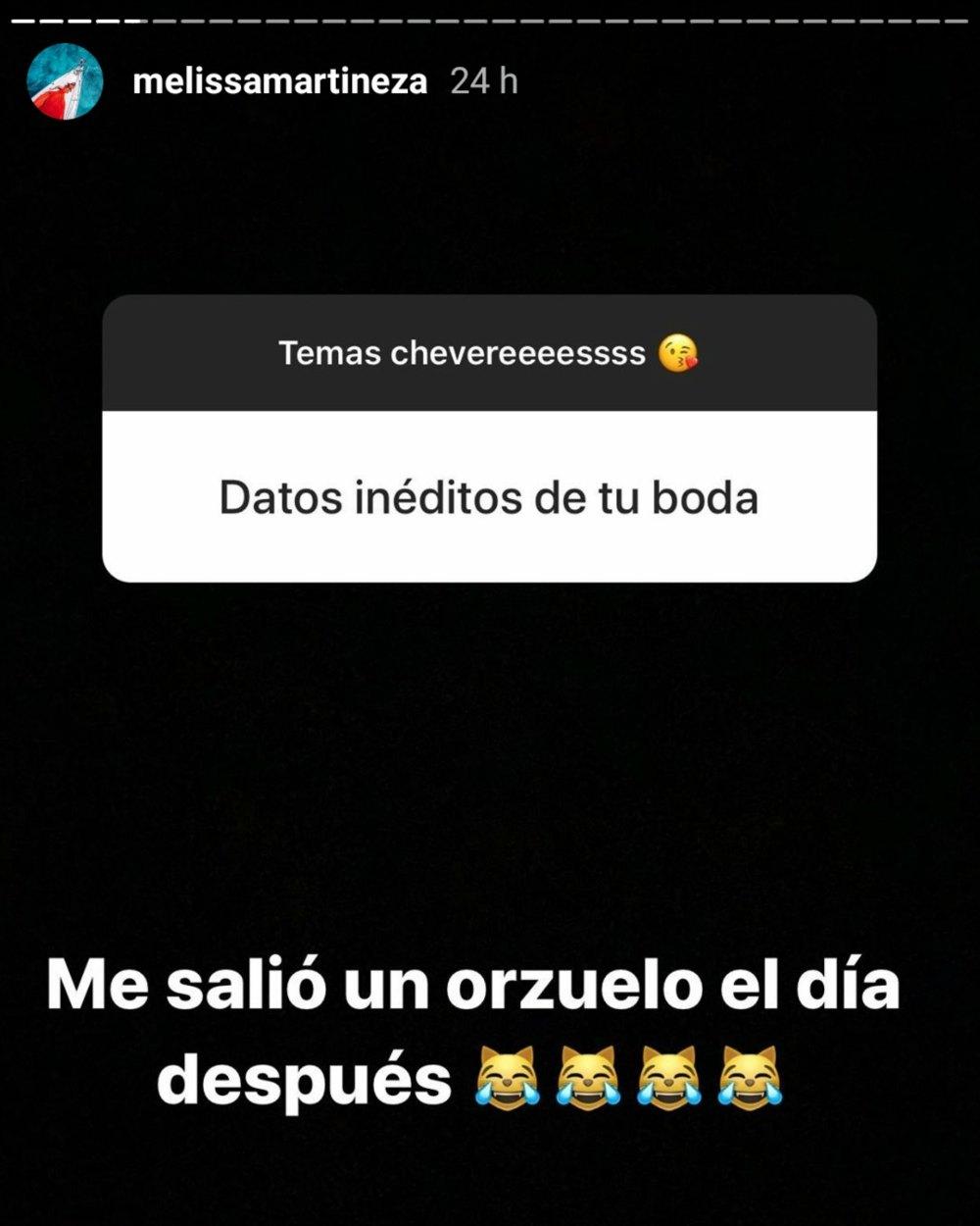 Melissa Martínez confiesa que le salió un orzuelo un día después de casarse