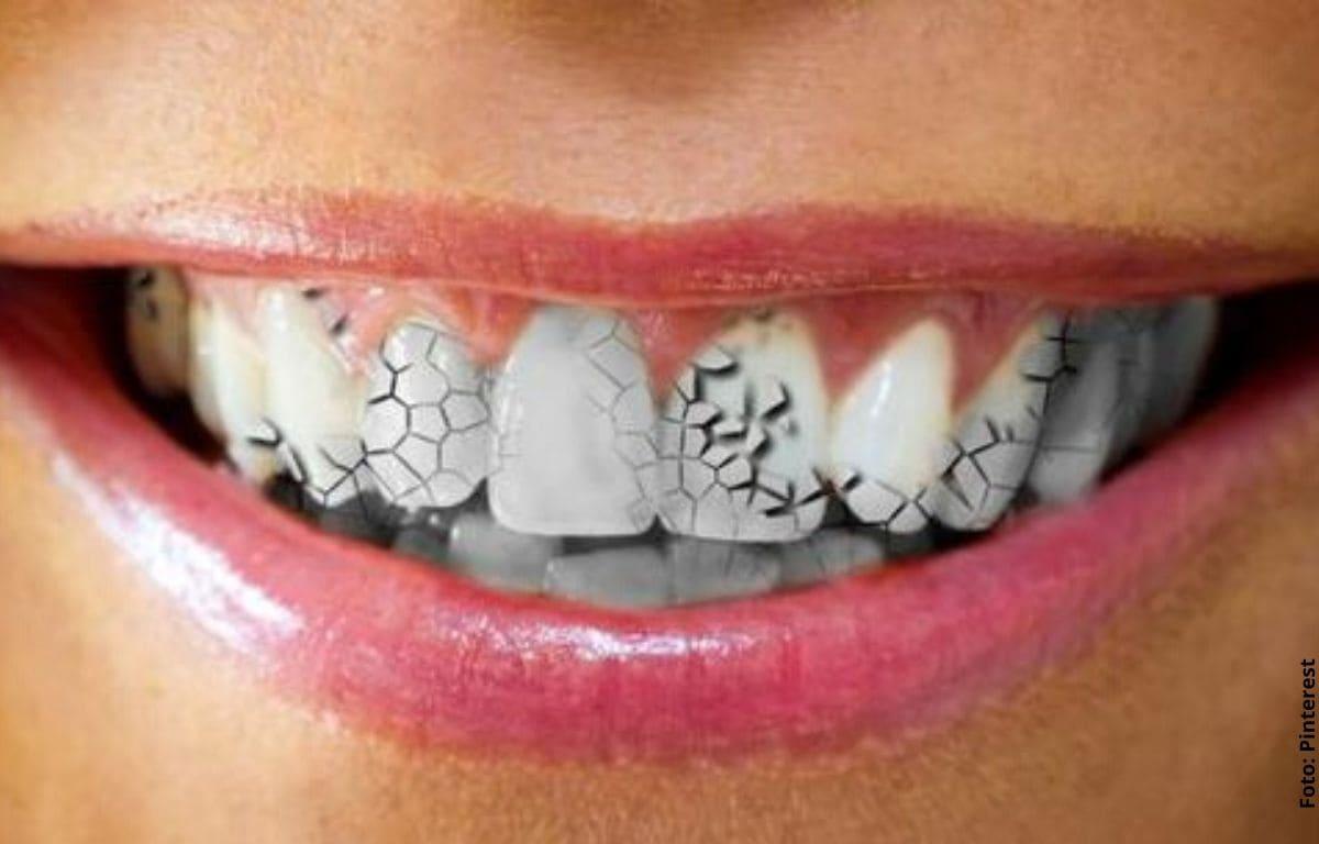 dientes con fisuras