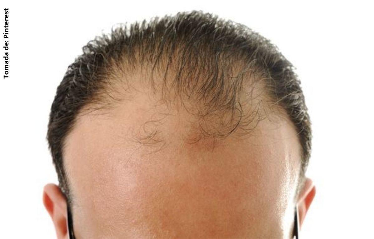 foto de la cabeza de un hombre calvo