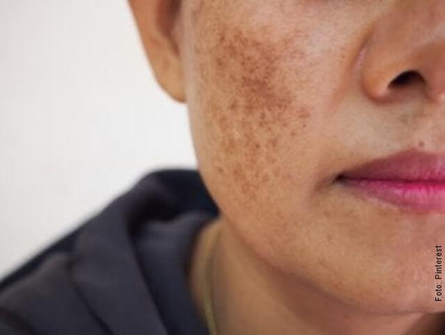 foto de manchas en la cara