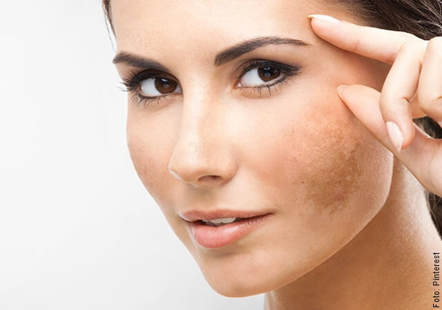 foto de mujer con manchas en la cara