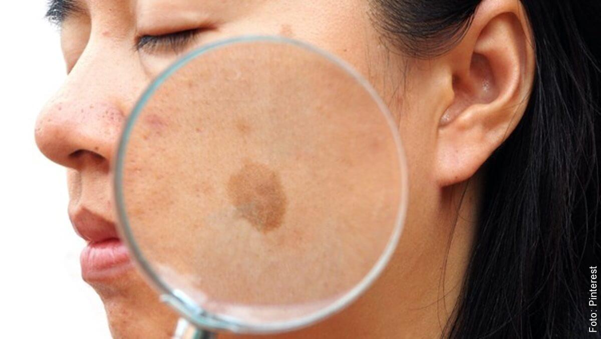 ¿Qué sirve para las manchas en la cara? Conoce estos tips