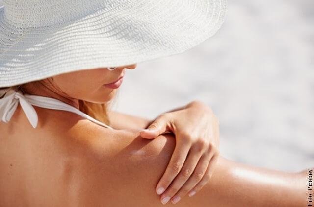 foto de mujer con piel quemada por el sol