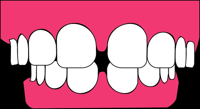 ilustración de encías