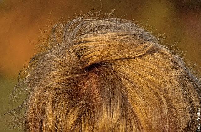 foto de cuero cabelludo