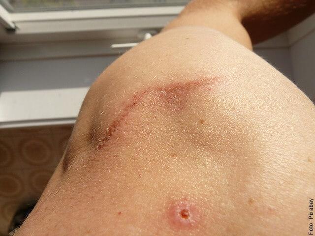foto de cicatriz