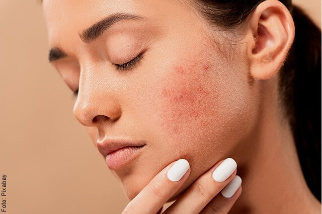 foto de mujer con alergia