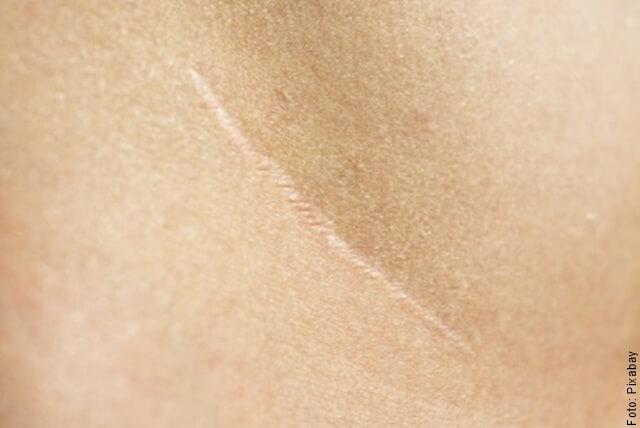 foto de una cicatriz