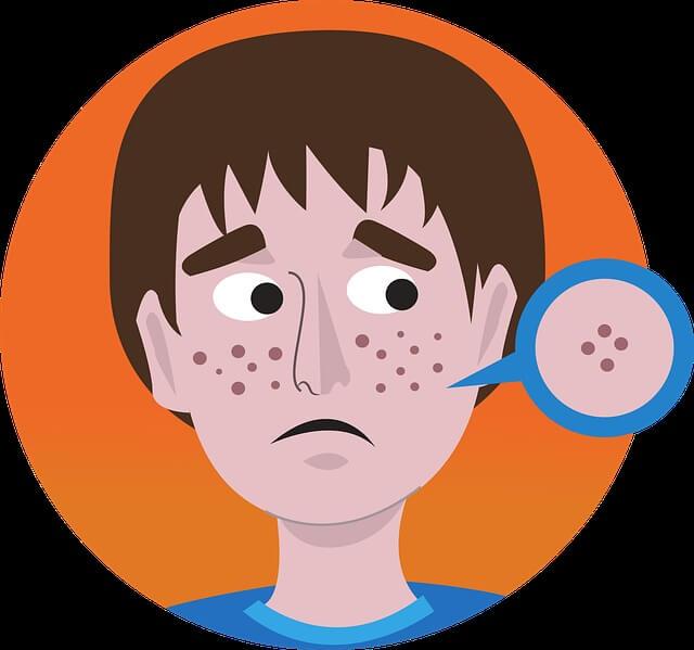 ilustración de joven con acné