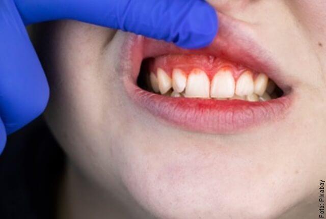 foto de dientes y encías
