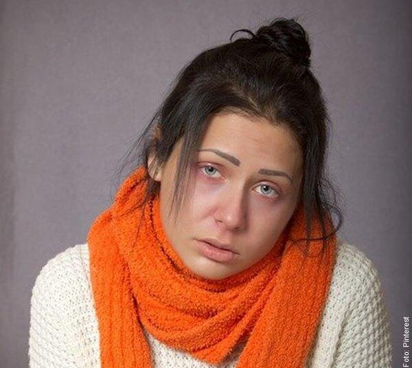foto de mujer con resfriado