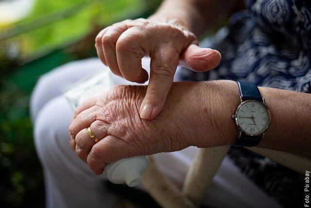 foto de manos con artritis