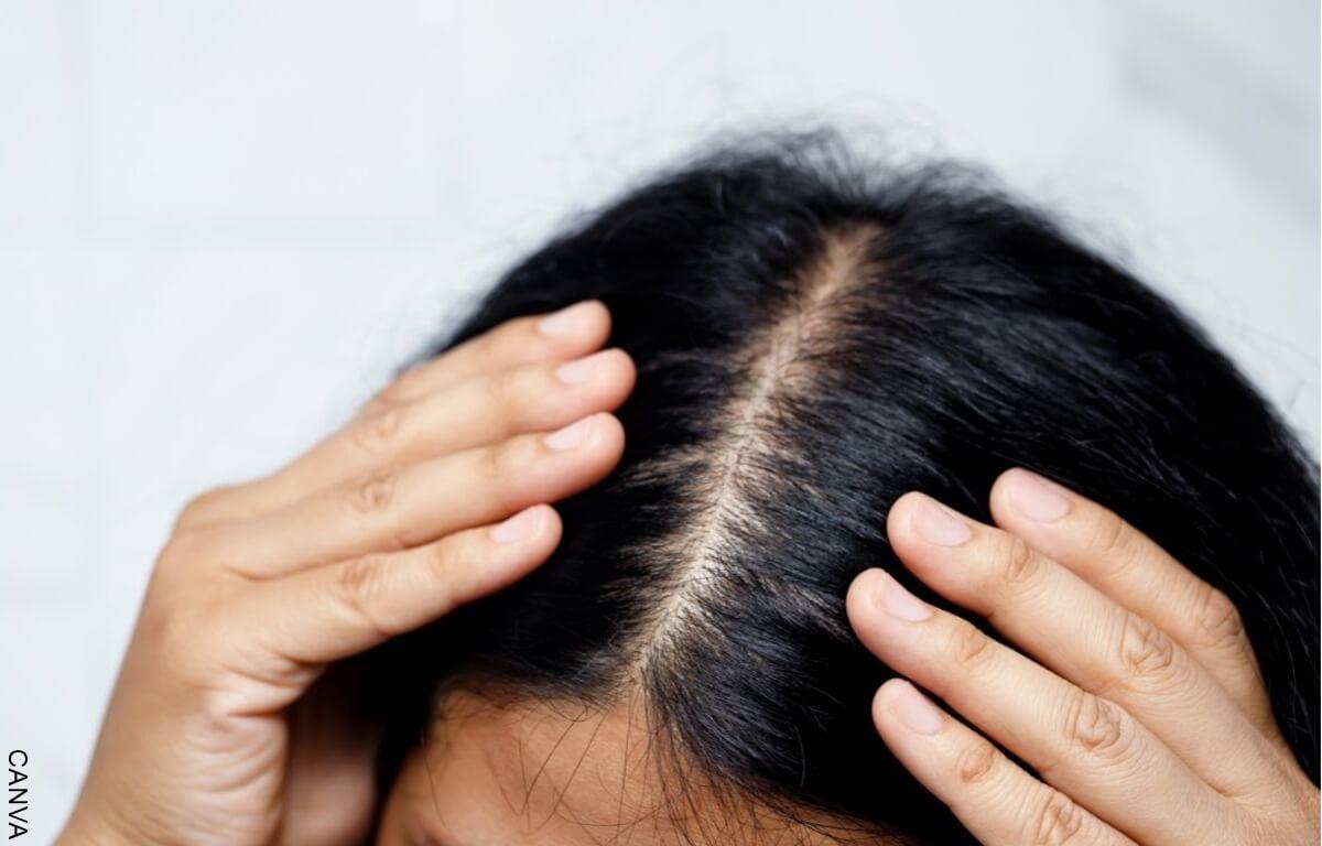 Soñar con caída de cabello qué tan malo es